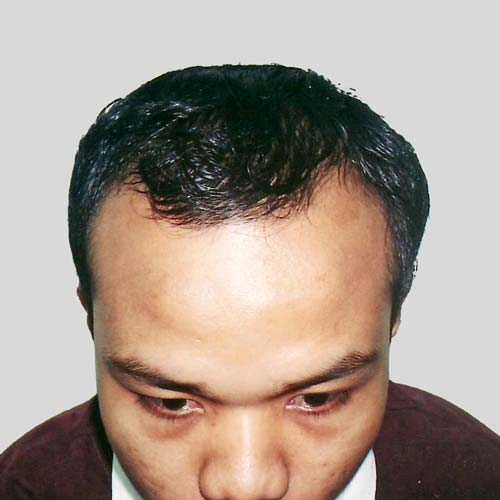 M shape hairloss