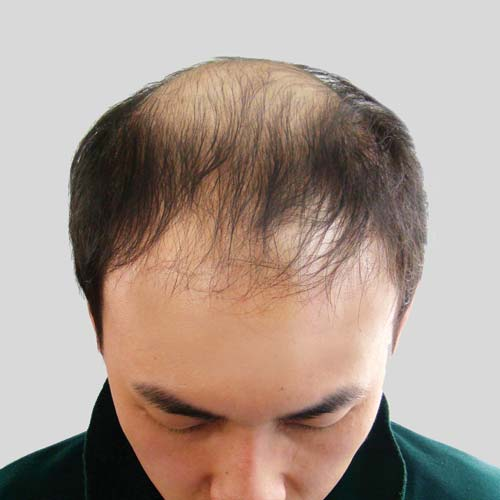 O Shape men hairloss