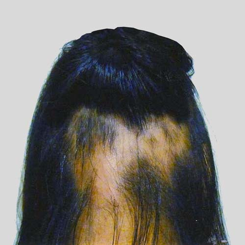 Ring shape hairloss
