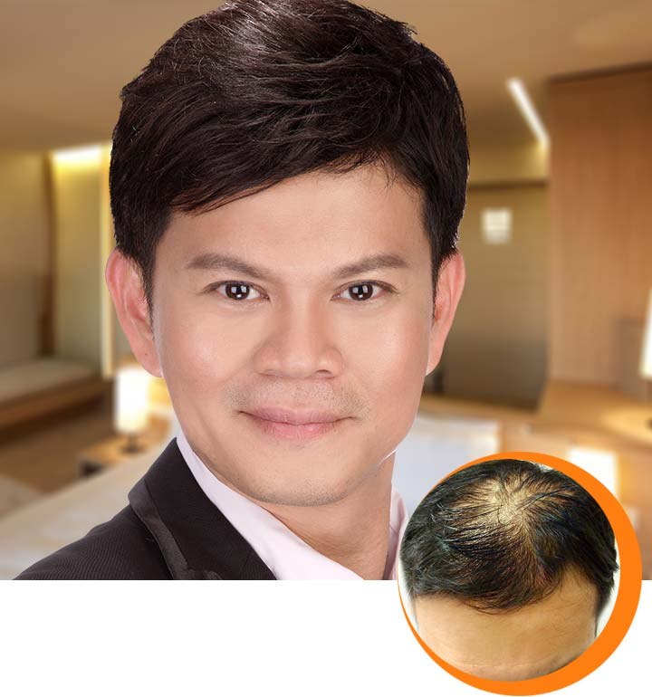 Hair Problem: Oily Scalp