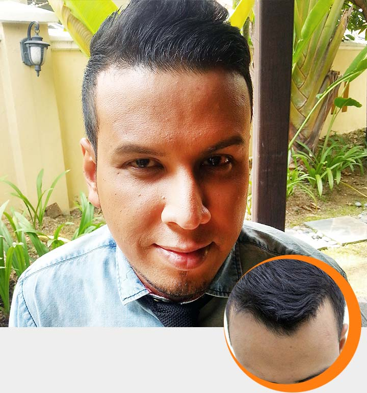 Hair Problem: Premature Hair Loss